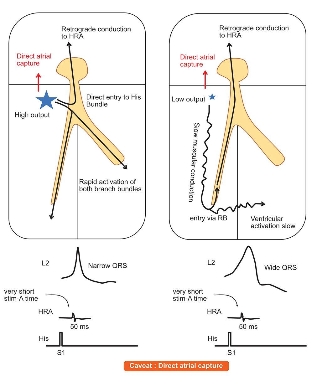 Parahisian pacing - caveat - direct atrial capture