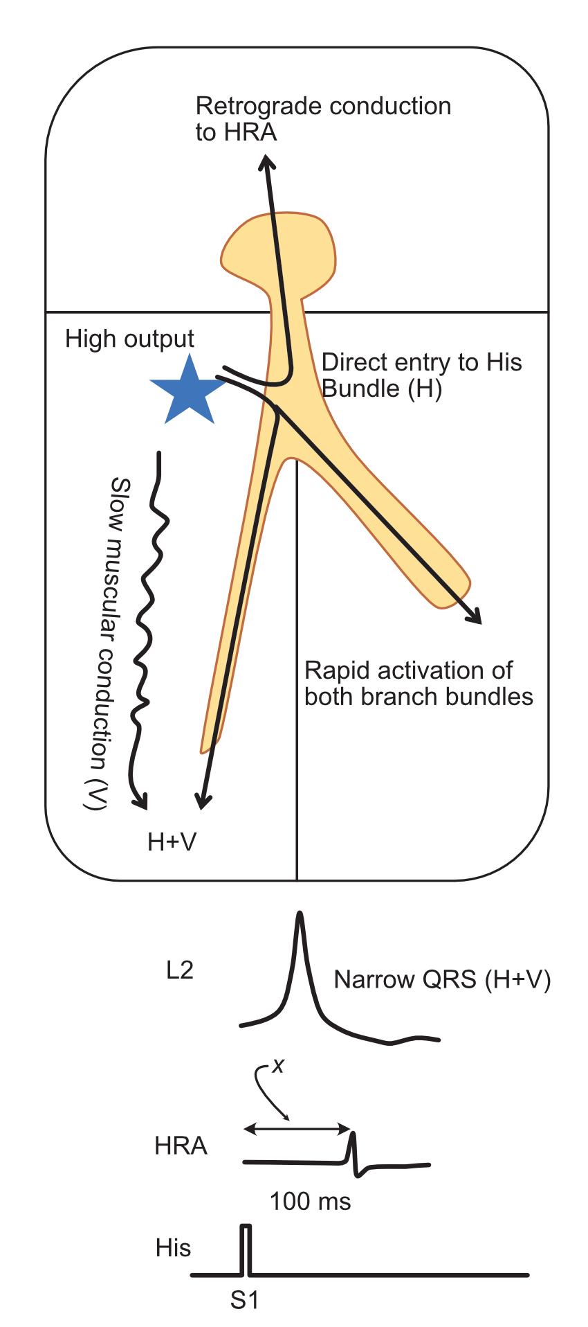 Parahisian pacing - capture of His bundle and myocardium at high output