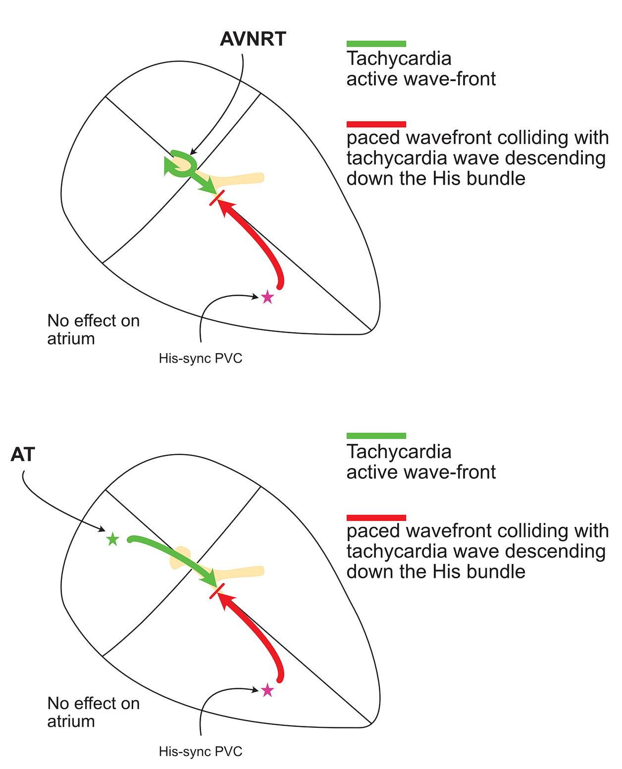 His synchronous ventricular pacing - no effect on av nodal re-entrant tachycardia