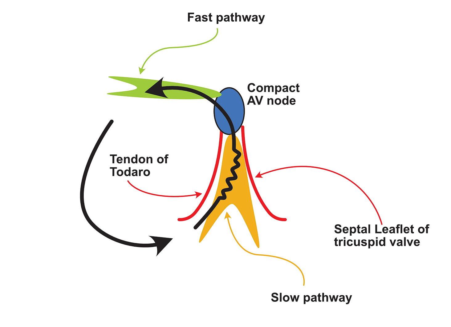 Re-entrant circuits - basic circuit of AV nodal re-entry
