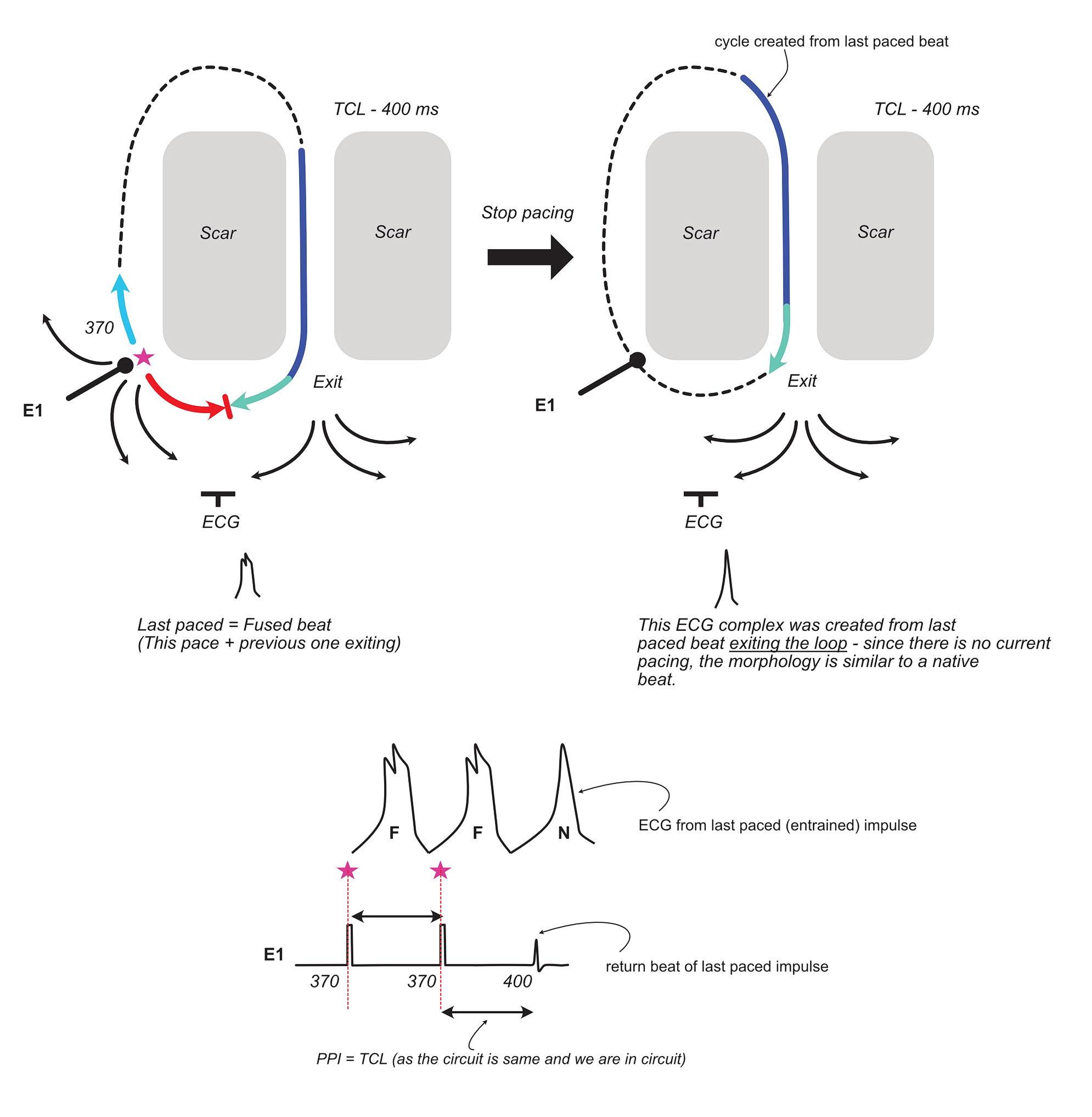Schema on the behaviour of a re-entrant circuit after sudden cessation of entrainment