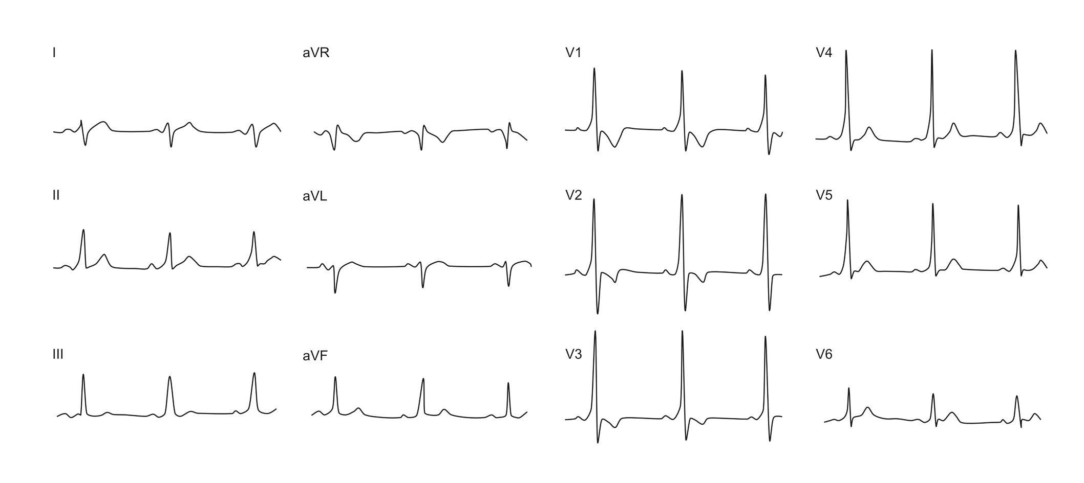 example of WPW ecg - left antero-lateral AP